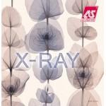 На фото X-RAY